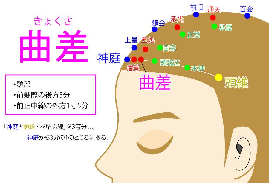 曲差(きょくさ:BL4)