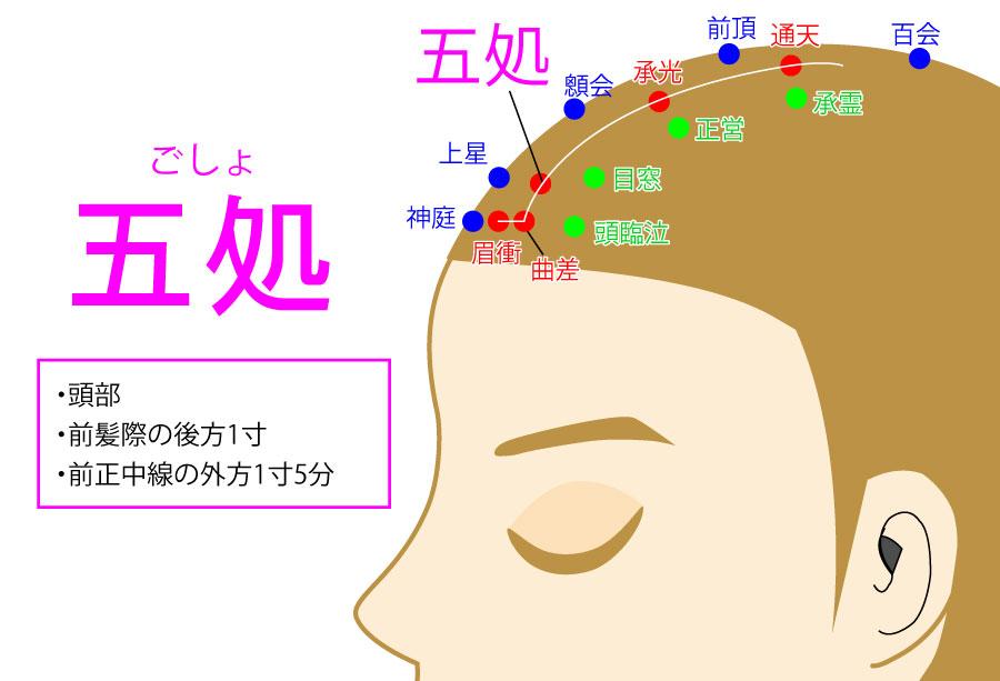 五処(ごしょ:BL5)