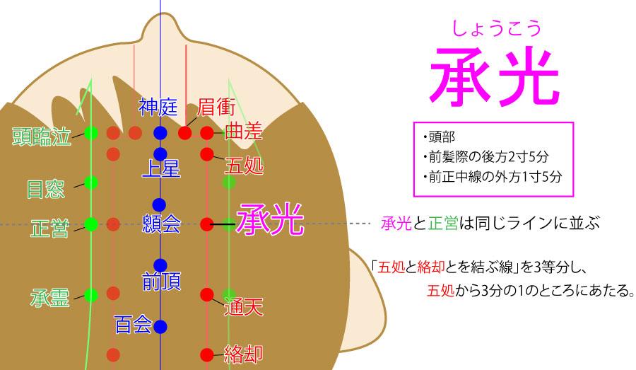 承光(しょうこう:BL6)