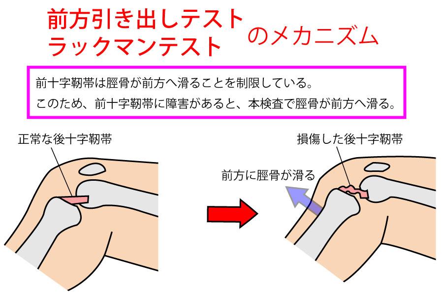 ラックマンテスト・前方引き出しテスト【膝関節の検査】
