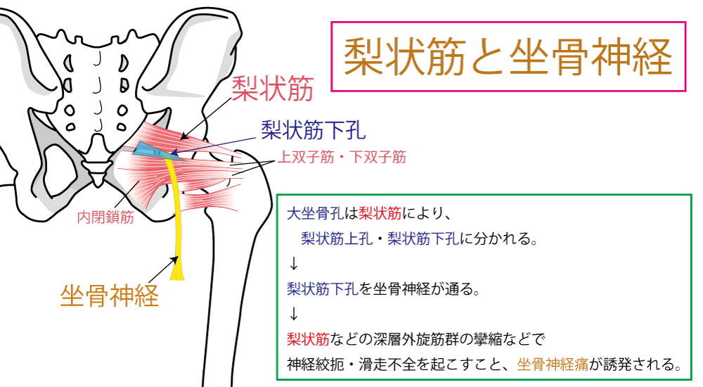 K・ボンネットテスト【梨状筋症候群のテスト】