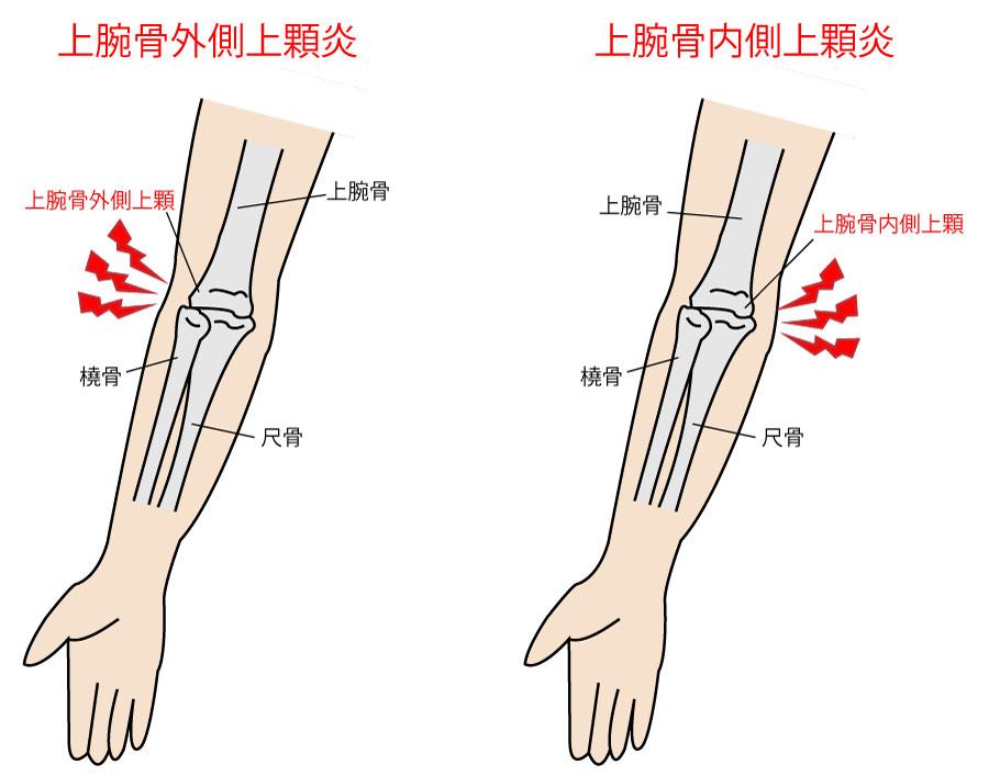 【疾患まとめ】肘関節の疾患