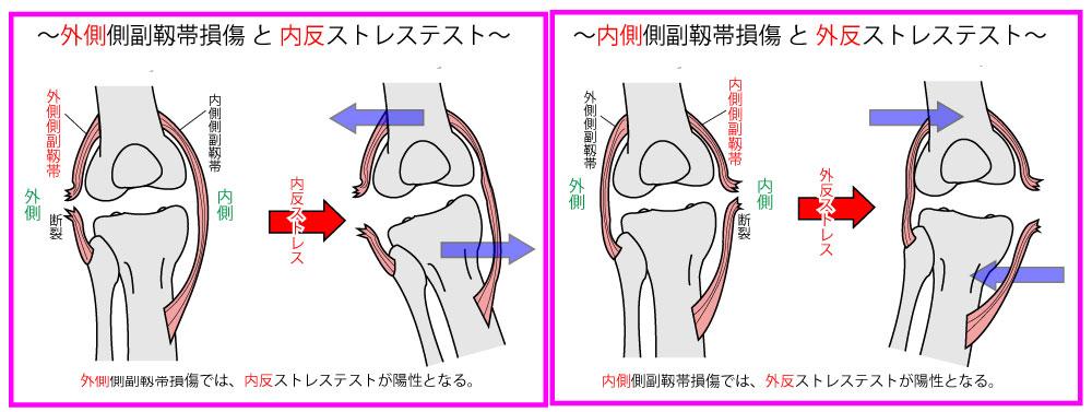 膝関節の内・外反ストレステスト【膝関節の検査】