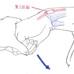 アイヒホッフテスト・フィンケルシュタインテストの違い【de Queruvan腱鞘炎の検査】