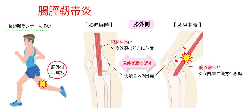 グラスピングテスト【ランナー膝の検査】
